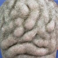 У 21-летнего бразильца голова приобрела форму мозга